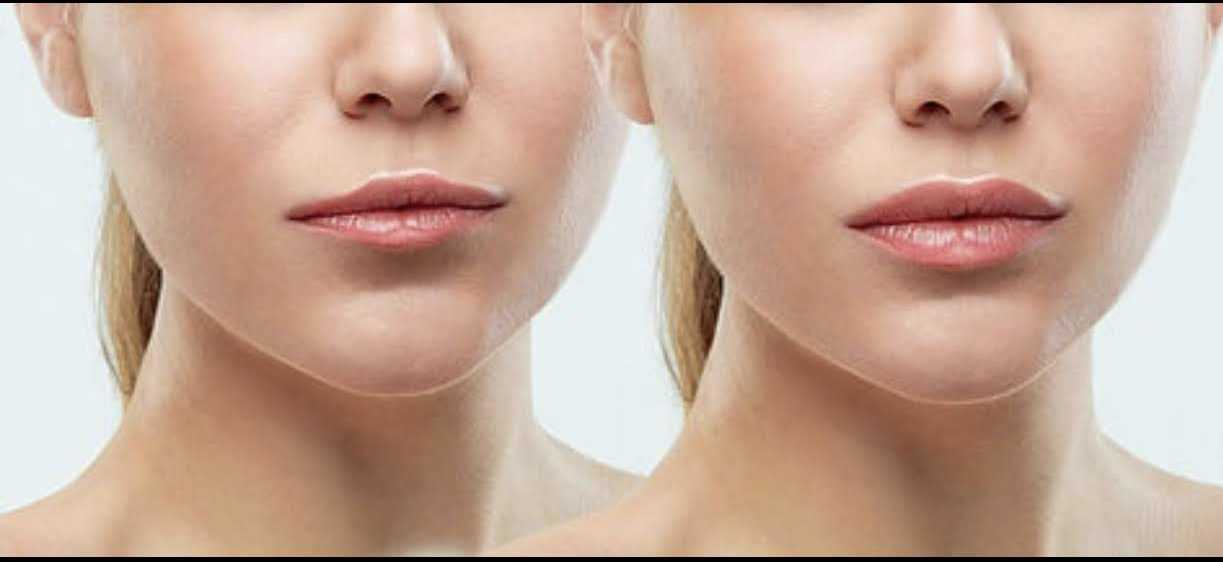 Benefit of Hyaluron Pen Treatment vs. Other Lip Enhancement Treatments
