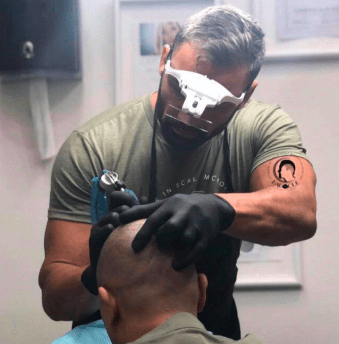 Everything You Need to Know About Scalp Micropigmentation